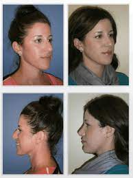 Waleed ezzat offers some information about getting covered for functional nose jobs. Rhinoplasty At Cosmeticare Cosmeticare