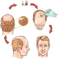 hair transplant how it works hair transplant cost in delhi hair implant in delhi