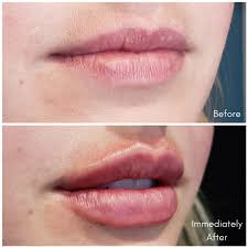 dermal filler before and afters in