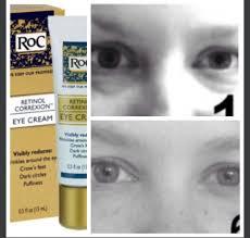 eye cream reviews 2016