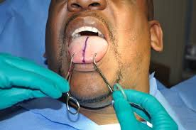 surgical steps tongue splitting surgery