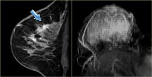 Mri for breast mass