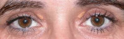 Resultado de imagen para Remedios para xantomas o xantelasmas