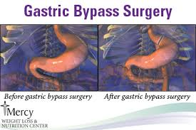 gastric byp before and after anatomy image