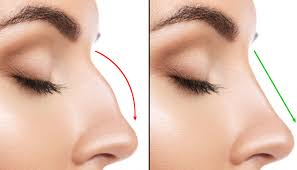 Can a nose job help with snoring? 11 Types Of Plastic Surgery Your Insurance Just Might Pay For