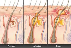 boils pictures on skin causes and