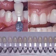Shade Matching Using The Lumin Vacuum Shade Guide A