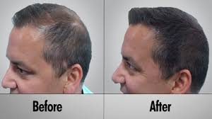 Baldness Hair Style hair loss treatment hair loss treatment for men how to prevent 8917 by wearticles.com
