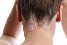 Imágenes de Skin Allergy Itching