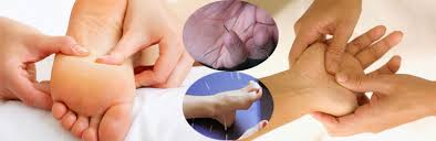 Image result for Acupuncture Therapy