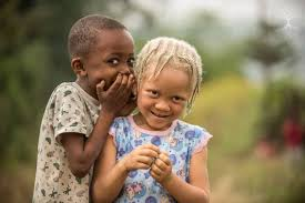 """Résultat de recherche d'images pour """"image d'albinos"""""""