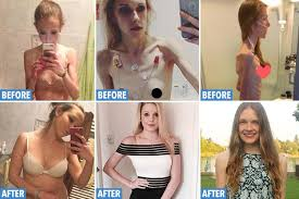 anorexics before and after. In Anorexics Before And After