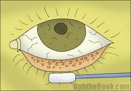 chapter 5 eye infections timroot