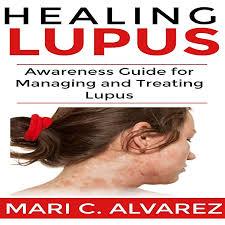 Amazon.com: Healing Lupus: Awareness Guide for Managing and Treating Lupus  (Audible Audio Edition): Mari C. Alvarez, Effie Bradley, Mari C. Alvarez:  Audible Audiobooks