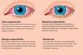 how to avoid pink eye conjunctivitis