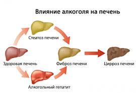 Как Алкоголь влияет на Печень Беременность и вирусный гепатит осложнения