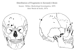 the jfk assassination medical evidence gif is a drawing from conspiracy author charles wilber of the distribution of fragments drawn from the work of cyril wecht it is quite consistent