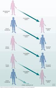 Diet Chart For Kidney Transplant Patients Kidney Transplant Mayo Clinic