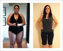 gastric sleeve before after women 2