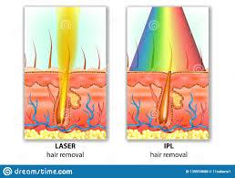 Intense Pulsed Light Laser Ipl Intense Pulsed Light And Laser Hair Removal Stock Vector