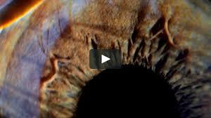 FASHION FILM . <b>Melissa</b> + <b>Vitorino Campos</b> . SPFW n41 on Vimeo