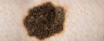 Looking For Skin Cancer Identifying Suspicious Moles