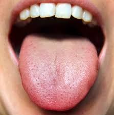 Tongue Analysis Chart The Basics Of Tongue Analysis