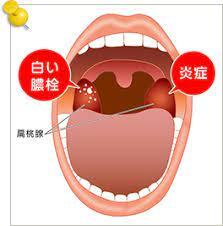 急性 扁桃 炎 と は