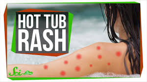 Tub You Can Hot Tubs Make You Sick Youtube