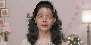 woman scarred by acid applying lip liner