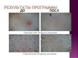 Дипломная работа Люлекина косметика dermalogica ДО ПОСЛЕ Подбородок 7