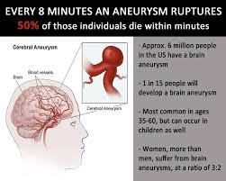 September Is Brain Aneurysm Awareness Month Brain Aneurysm