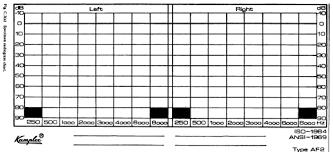 Audiogram Chart Blank Figure C 3 A Specimen Audiogram Chart Download