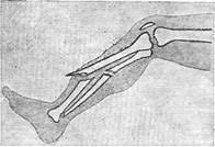 Реферат Переломы ru Рис 1 Схема закрытого слева и открытого справа перелома костей голени