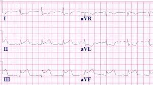 Top 5 Mi Ecg Patterns You Must Know Learntheheart Com