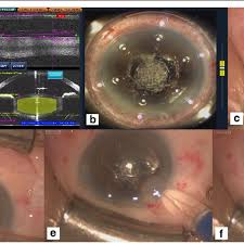 femtosecond laser isted cataract