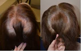 Hairstyle For Women 48 Best Finasteride Females Before After Photos Hair Restoration Of