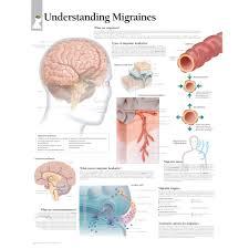 Migraine Chart Understanding Migraines Chart