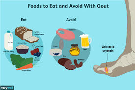 Diet Chart For Gout Arthritis Gout What To Eat For Better Management