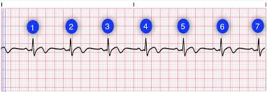 Heart Rate Lesson Quiz
