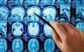 Afbeeldingsresultaat voor neurologie