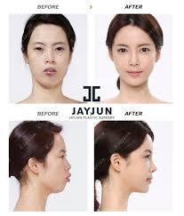 korean face contouring makeup korea contouring korea contouring surgery before and after korea