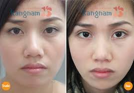 Trước và sau khi bấm mí  hàn quốc tại thẩm mỹ viện kangnam