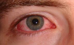 pink eye also known as conjunctivitis can cause redness itching and tearing