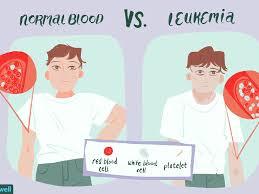 Leukemia Symptoms Causes Diagnosis And Treatment
