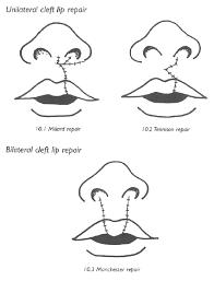 cleft lip repair ent ears nose throat unilateral cleft lip repair millard repair