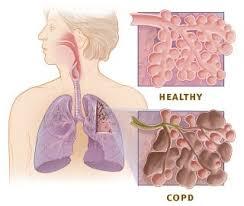 Case Study   Airway Breathing Oxygenation Pneumonia Chronic     Search Medical Field