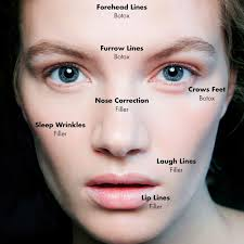 botox vs fillers which one is better