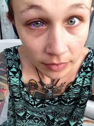 модель хочет удалить себе глаз после того как ее бывший сделал ей