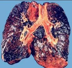 Лёгкие бывшего курильщика